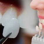 CEREC dantų laminatės