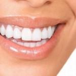 greitas dantų tiesinimas