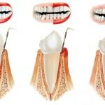 parodontozės operacija